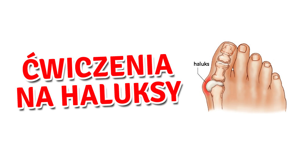 Ćwiczenia, dzięki którym zwalczysz haluksy