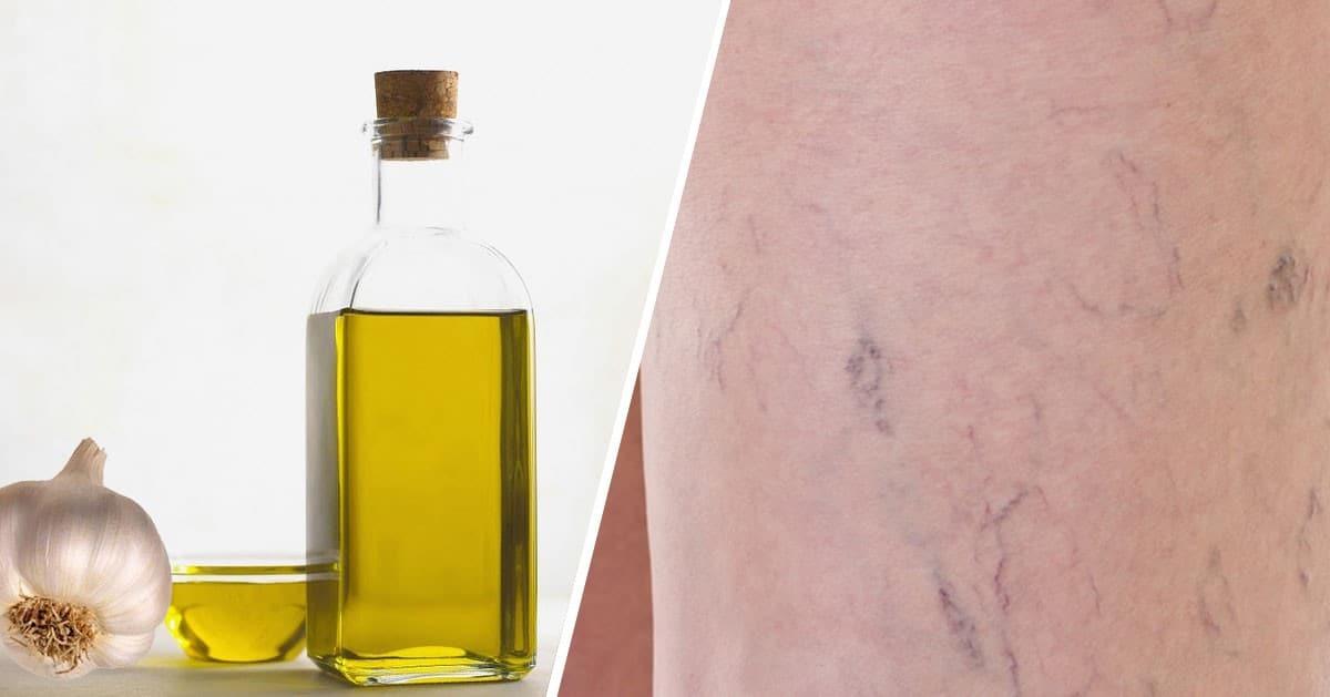 Oliwa z oliwek i czosnek pozwolą zwalczyć Ci żylaki oraz pajączki