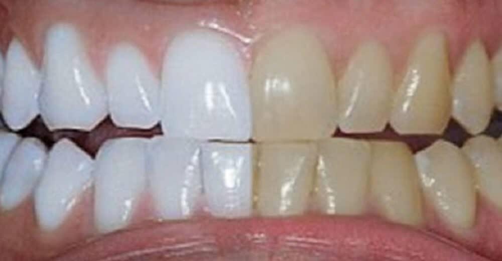 Prosta domowa metoda, która odmieni Twoje zęby!