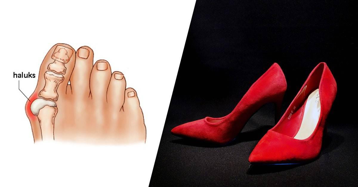 a38084f5 Jeśli masz haluksy zobacz jakie buty powinnaś nosić ...