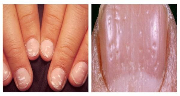 DomPelenPomyslow.pl Jeśli Twoje paznokcie wyglądają tak jak na zdjęciu musisz zacząć jeść dwie rzeczy