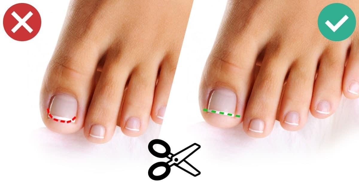 Dzięki tym kilku trikom Twoje paznokcie u stóp będą wyglądać dużo lepiej!