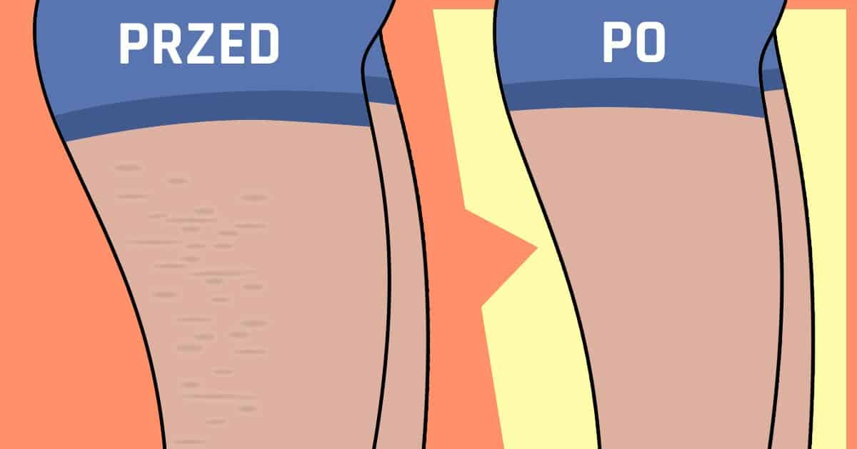 Dieta na cellulit – zobacz jak się go pozbyć!