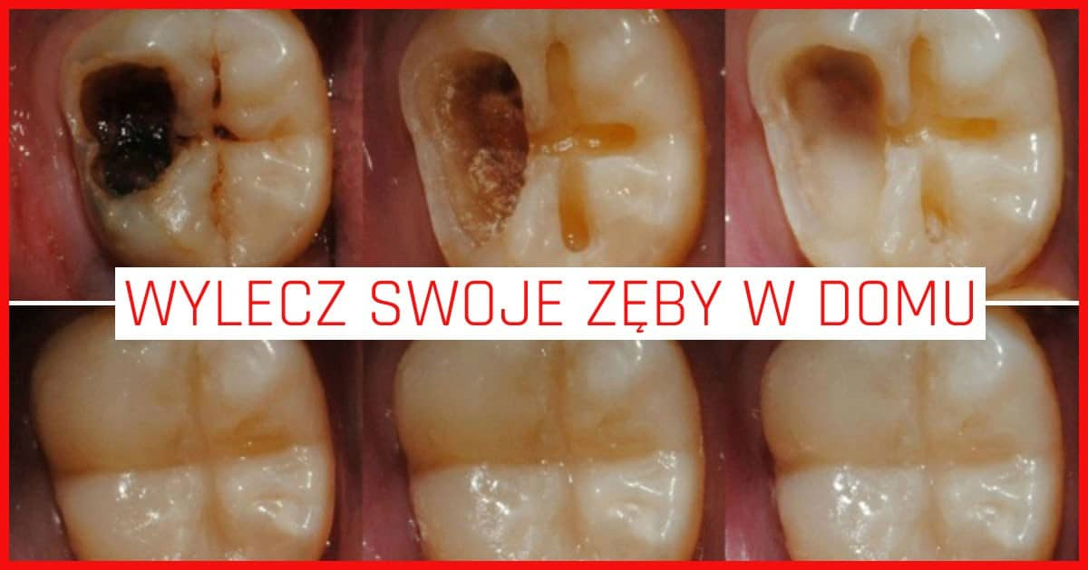 Masz problemy z zębami? Musisz wprowadzić tych 5 zmian!