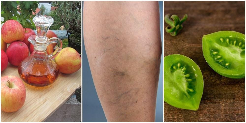 Żylaki na nogach – zobacz jak z nimi walczyć domowymi metodami