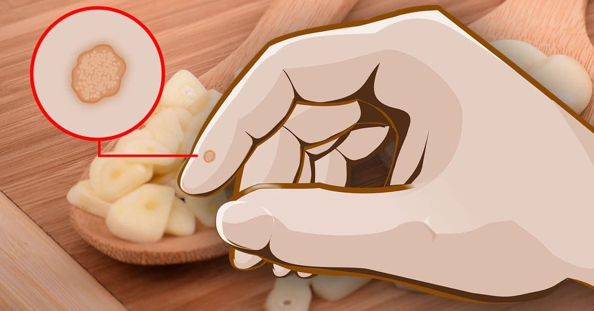 Naturalny sposób na usunięcie brodawek, kurzajek czy tagów skórnych