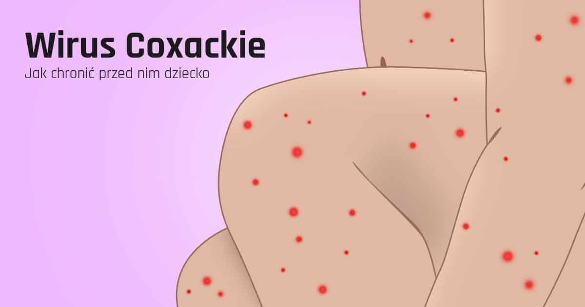Wirus Coxackie co to jest i jak chronić nasze dziecko