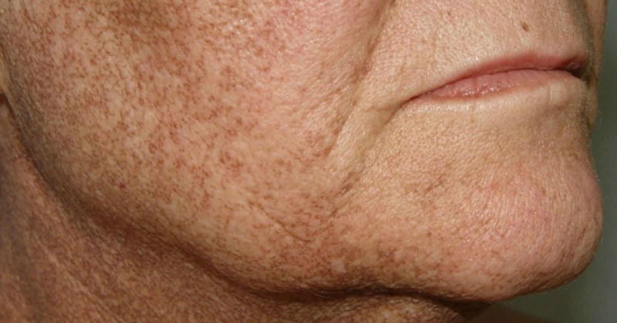 Rozwiąż problemy związane z przebarwieniami skóry tymi naturalnymi lekami