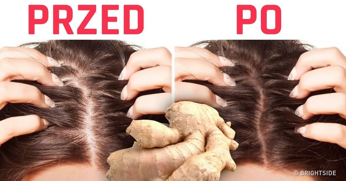 Niezwykłe korzyści z jedzenia imbiru, które jako kobieta musisz znać