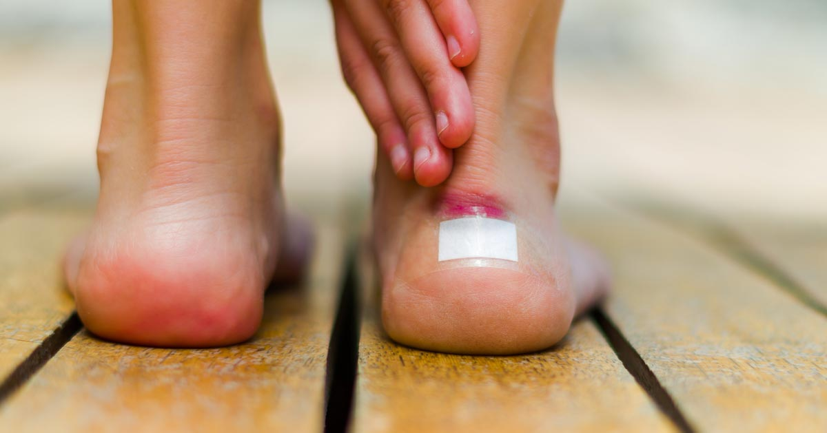 Obtarte pięty od butów – DOMOWE SPOSOBY