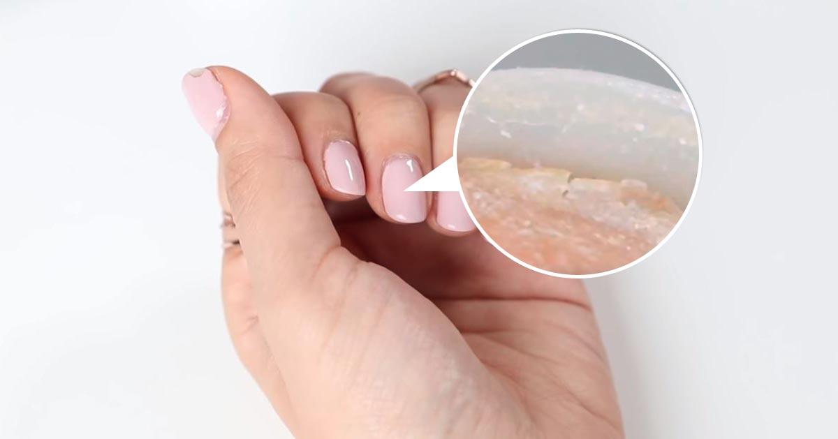 Zobacz co 5 lat żelowego manicure robi z paznokciami!