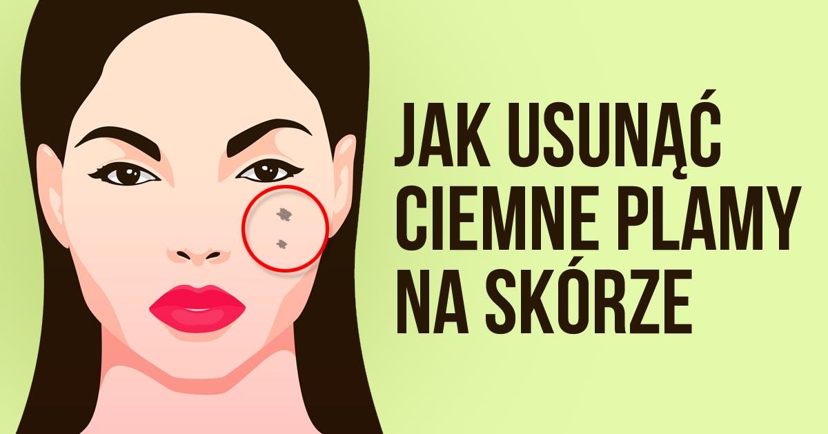 Ciemniejsze plamy na twarzy – 3 maseczki, które pomogą Ci je usunąć