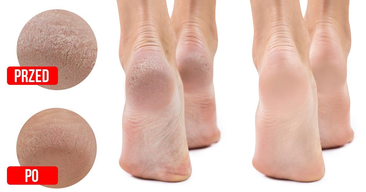 Jak zmiękczyć skórę na stopach