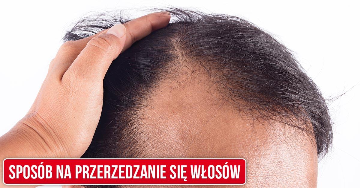Twoje włosy zaczęły się przerzedzać? Zacznij codziennie to brać by opóźnić proces łysienia!