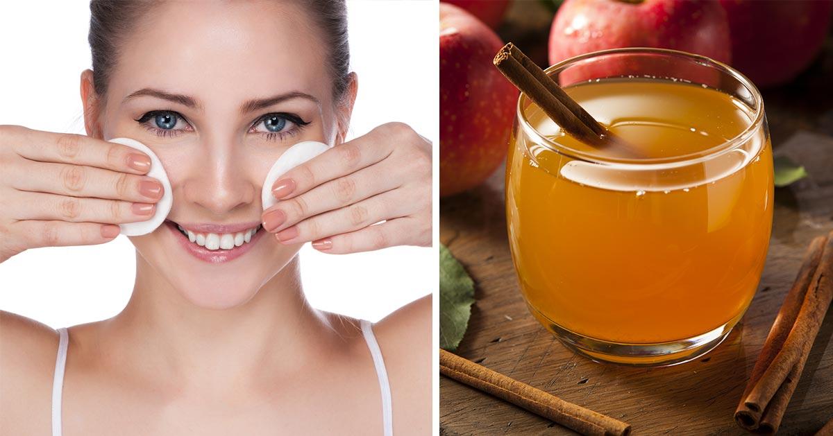 Nałóż ocet jabłkowy na twarz. Zobacz jakie niesie to korzyści!