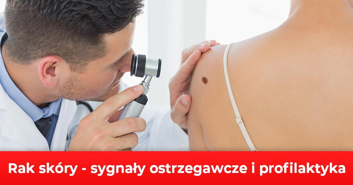 Rak skóry – sygnały ostrzegawcze i profilaktyka