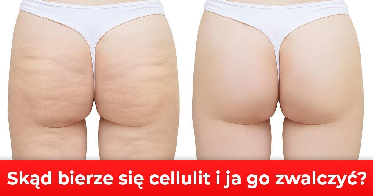 Skąd bierze się cellulit? Sposoby na usunięcie cellulitu.