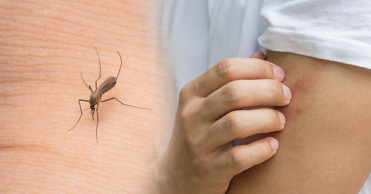 Jeśli tak się ubierasz to przyciągasz do siebie komary!