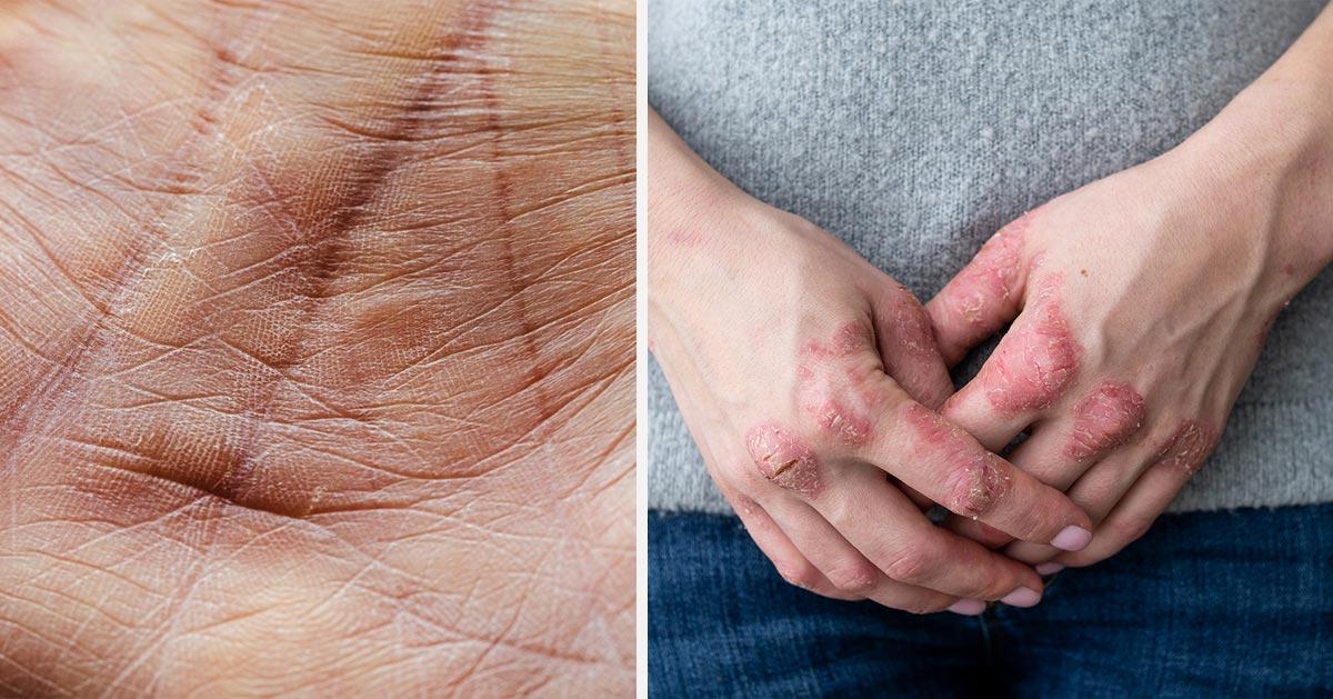 Co może oznaczać sucha skóra na dłoniach? 3 choroby, których jest objawem!