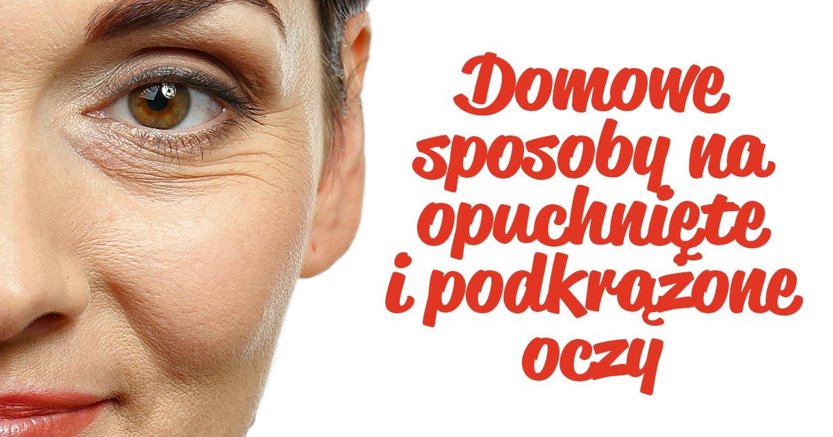 Domowe sposoby na opuchnięte i podkrążone oczy