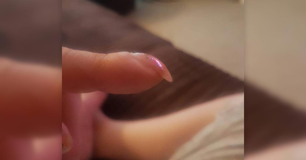 Podzieliła się na Facebooku zdjęciem paznokcia. Okazało się, że ma raka!