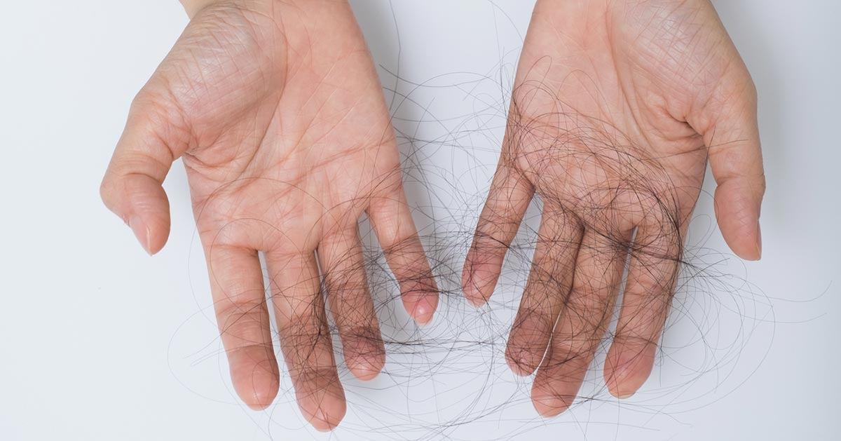 Skuteczne sposoby na nadmierne wypadanie włosów