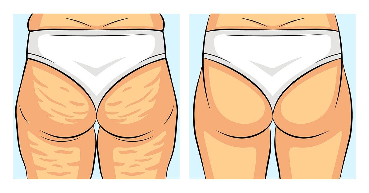 Dermatolodzy dają wskazówki jak faktycznie zredukować cellulit