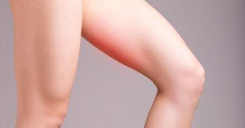 Obtarcia na udach – jak im zapobiegać i leczyć?